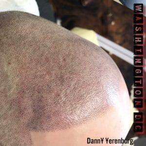 hair tattoo using scalp aesthetics